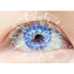 Global Ophthalmic Femtosecond Lasers Market 2019 – Alcon