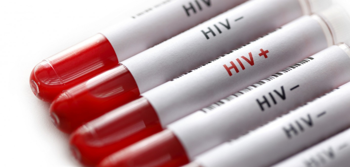 Inactivated HIV Persisting In Patients' Cells Can Be Measured With Accuracy